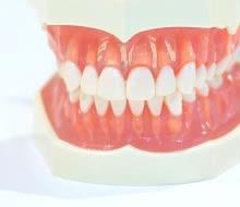 """金属アレルギーの人も安心!""""オールセラミック""""の歯が美しい理由とは"""