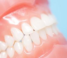 天然歯の白さにどこまでも近づける!セレック治療に使用する物