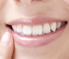 歯並びって大切!歯並びが悪いと不潔に見られているかも…