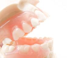 「交叉咬合」型の歯並びの特徴とデメリットについて