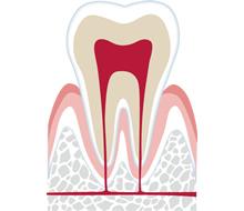 熱いものが歯にしみる…それ歯の神経を抜く必要があるかも