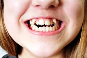 どのタイプだと矯正が必要?気になる子供の歯の生え方は?